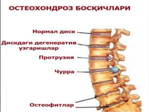 Osteoxondroz nima, sabablari, turlari, asoratlari.